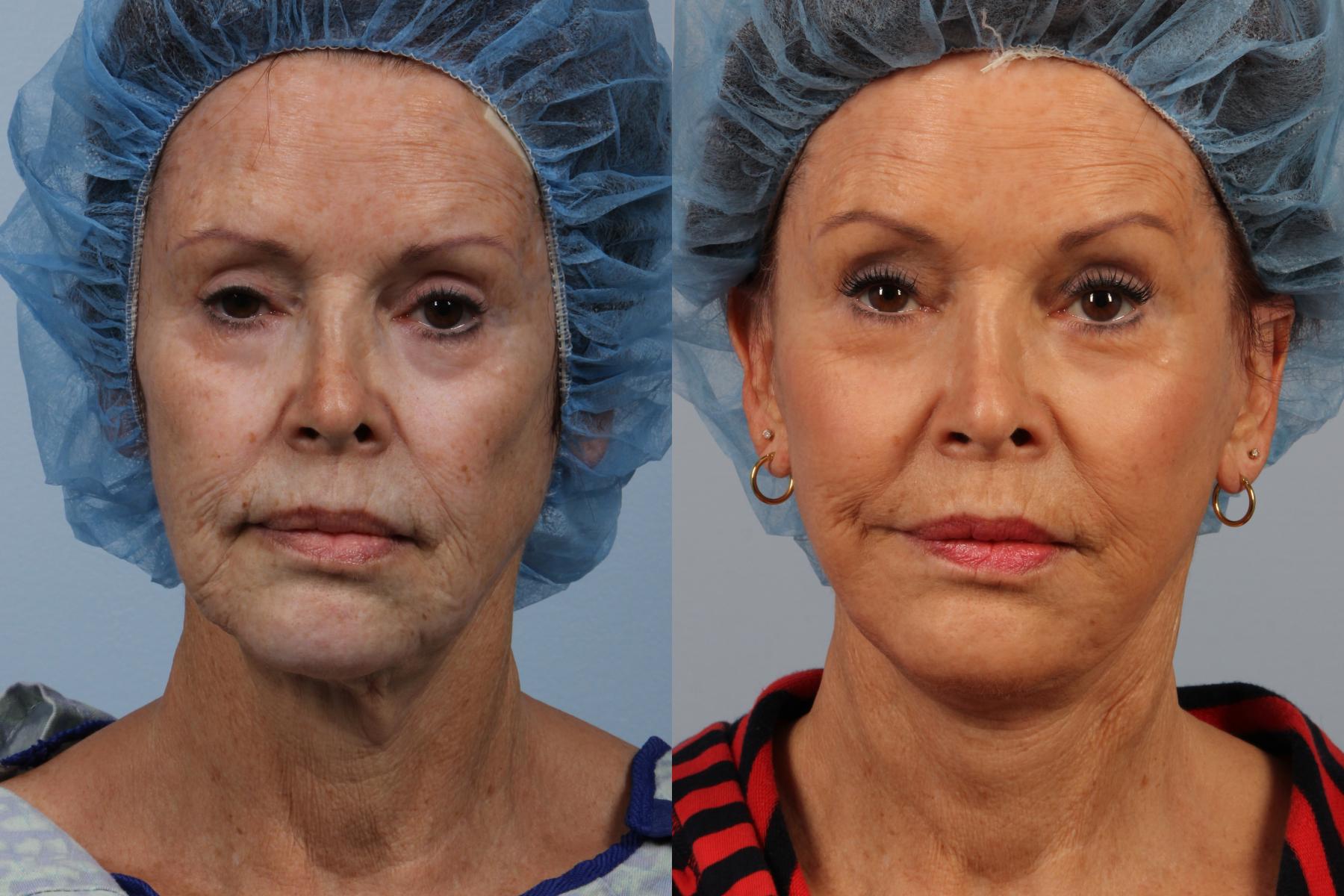Процесс реабилитации после подтяжки лица, осложнения