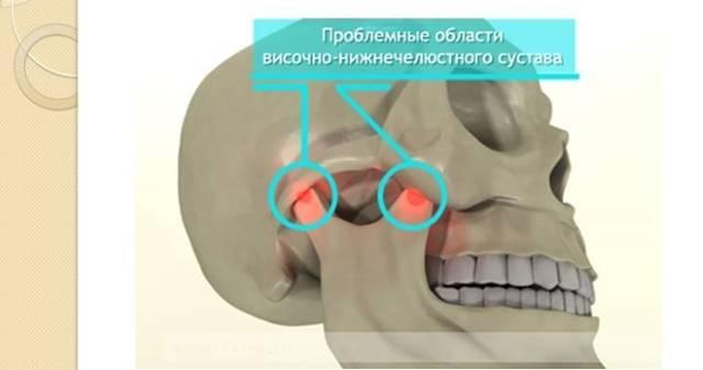 Характеристика подвывиха челюстного сустава: ранняя симптоматика и альтернативные методы лечения