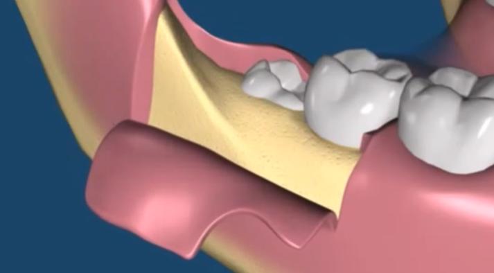 Возможные осложнения: почему болит десна после удаления зуба?