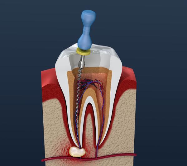 Как убить нерв в зубе безопасными способами