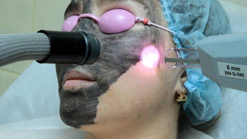 Что надо знать о лазерной эпиляции, прежде чем на неё решиться