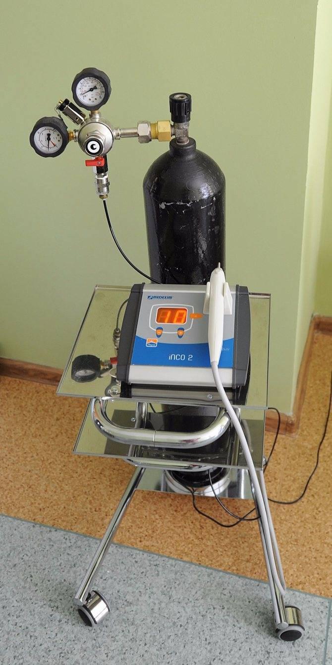 Карбокситерапия при остеохондрозе: отзывы