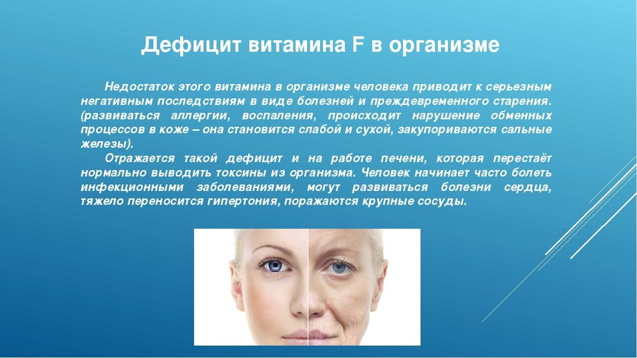 Недостаток витамин д в организме, основные симптомы, лечение дефицита