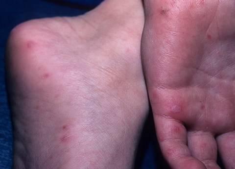 Энтеровирусный везикулярный стоматит — фото, симптомы, лечение