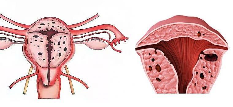 Диффузные изменения матки внутренний эндометриоз