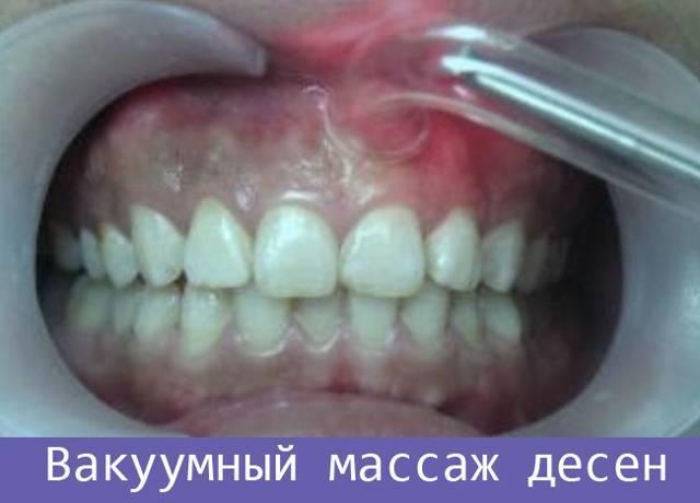 Массаж десен пальцами. как правильно делать массаж десен в домашних условиях. массаж десен при прорезывании зубов