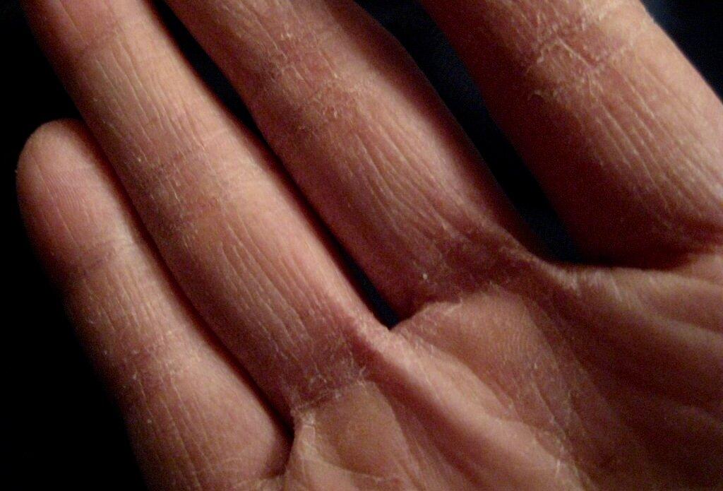 Почему шелушится кожа на пальцах рук, что нужно делать? методы лечения