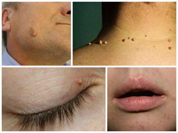 Лазерное удаление родинок на лице и на теле