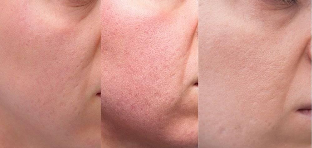 Виды шрамов на лице и способы их удаления. каким должен быть уход за кожей после лечения?