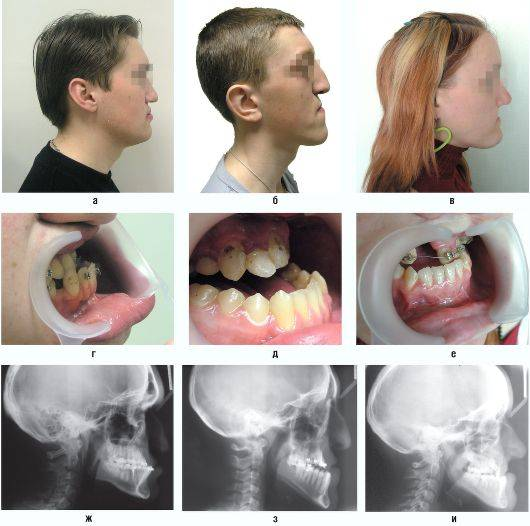 Исправление узкой верхней и нижней челюсти у взрослых и детей: аппараты для расширения