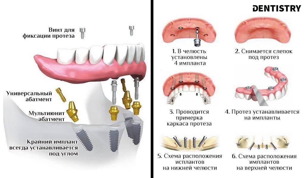Гарантия на протезирование зубов по законодательству