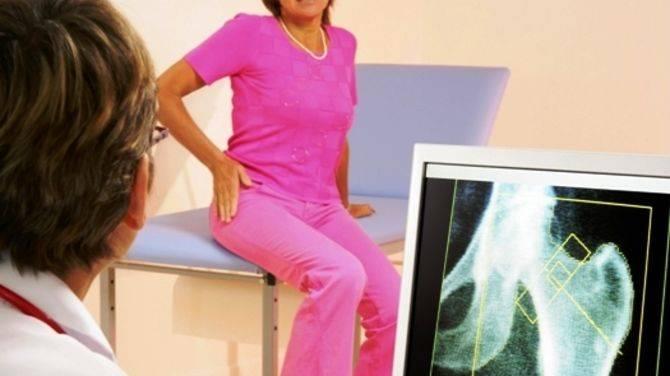 Профилактика остеопороза при климаксе, лечение