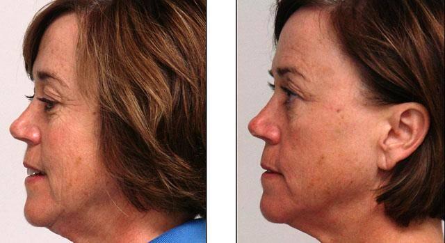 Озонотерапия для волос отзывы