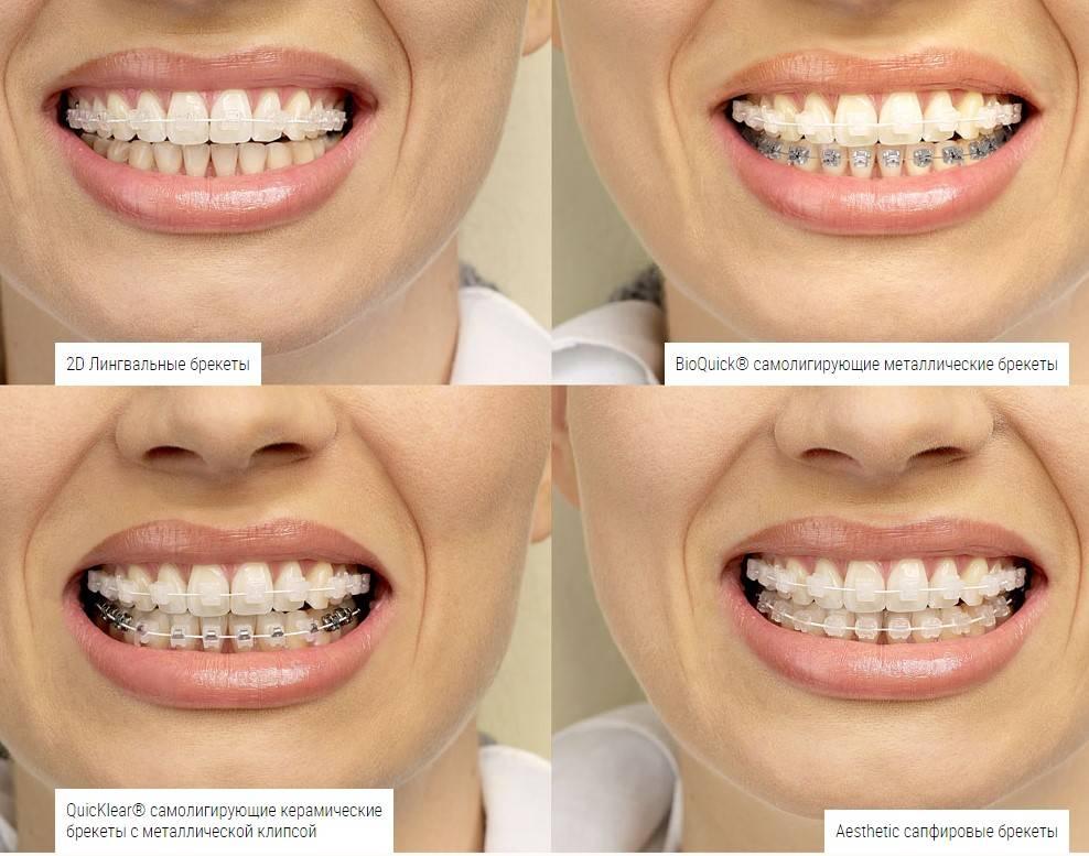 Сапфировые брекеты — эталон среди выравнивания зубного ряда