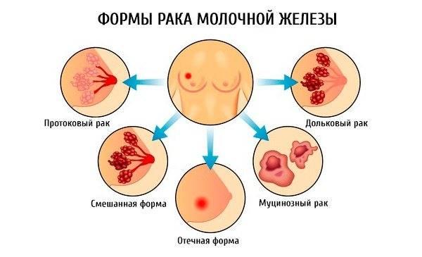 Кровь из соска — причины появления, диагностика и лечение
