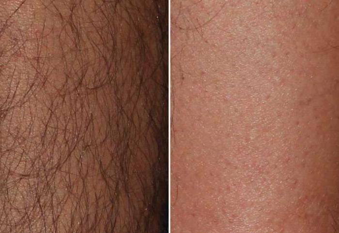 Какая должна быть длина волос для шугаринга в разных зонах тела