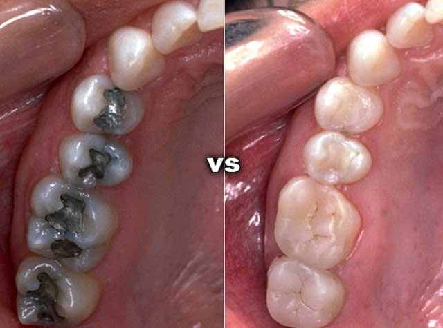 Через сколько можно есть после пломбирования зубов и можно ли курить?