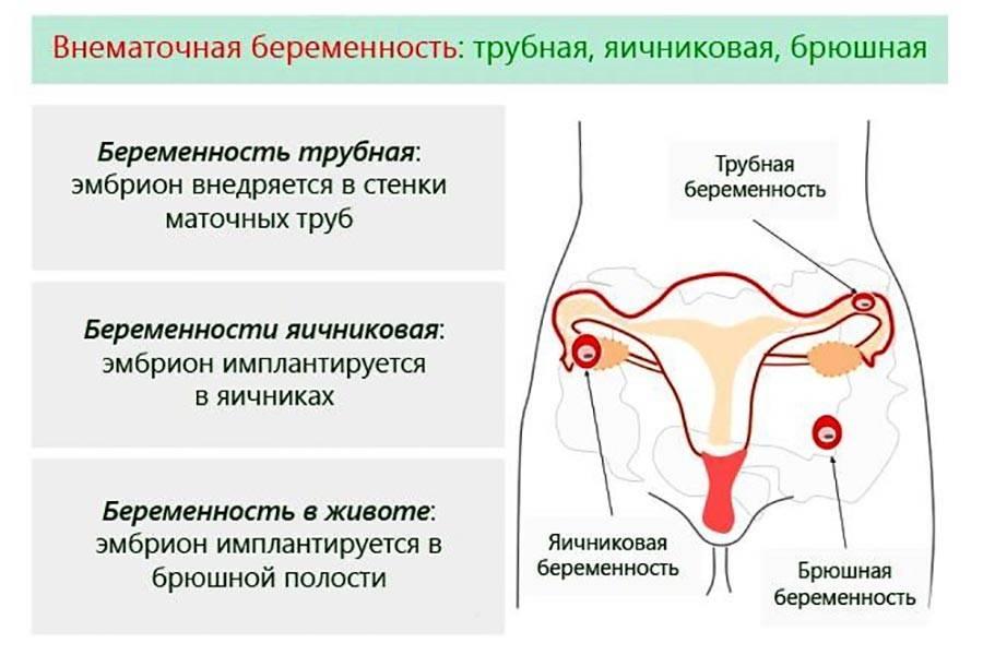 Что такое мультифолликулярные яичники и можно ли с ними забеременеть