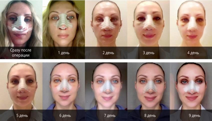 Специфика проявлений негативных последствий после септопластики носа (носовой перегородки)