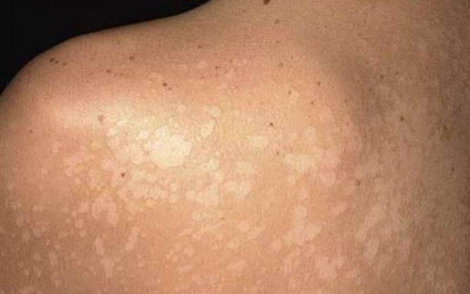 Отрубевидный лишай: симптомы и лечение