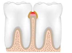 Как избавиться от кровоточивости десен и постоянного неприятного запаха изо рта
