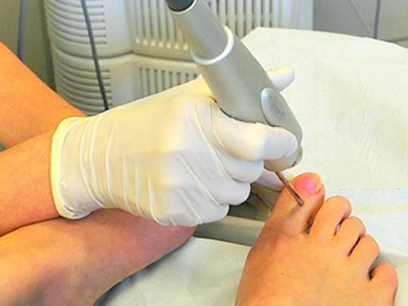 Удаление вросшего ногтя — описание и виды операции по хирургическому удалению