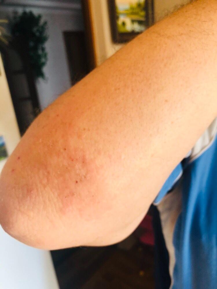 Почему шелушится кожа на локтях и коленях и как с этим бороться