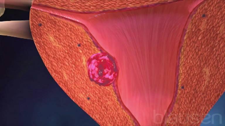 Рак эндометрия