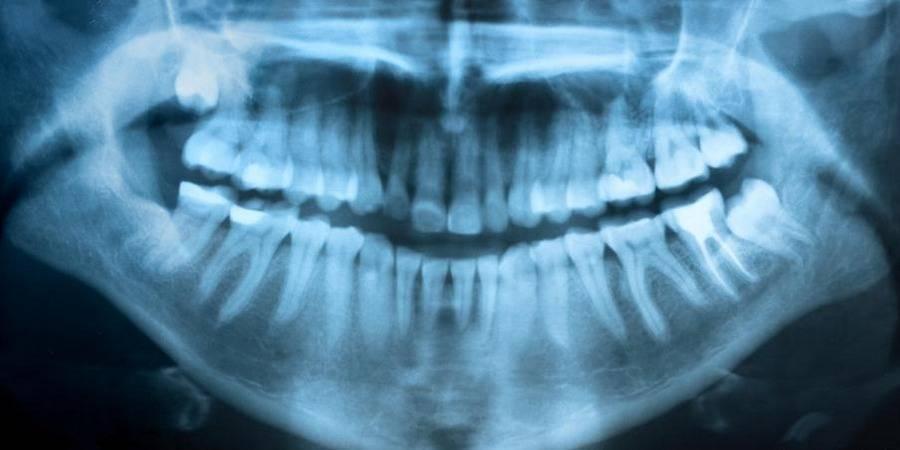 Рентген суставов: подготовка, проведение и расшифровка результатов диагностики