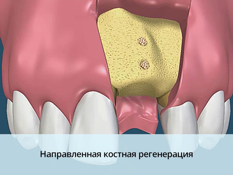 Возникновение экзостоза после удаления зуба и хирургическое лечение.