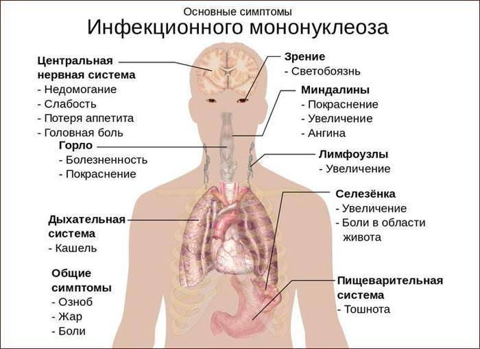 Кашель болит горло язвочки в горле