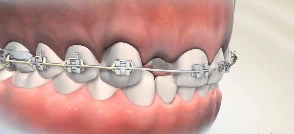 Есть ли противопоказания к установке брекетов при наличии коронок или имплантов?
