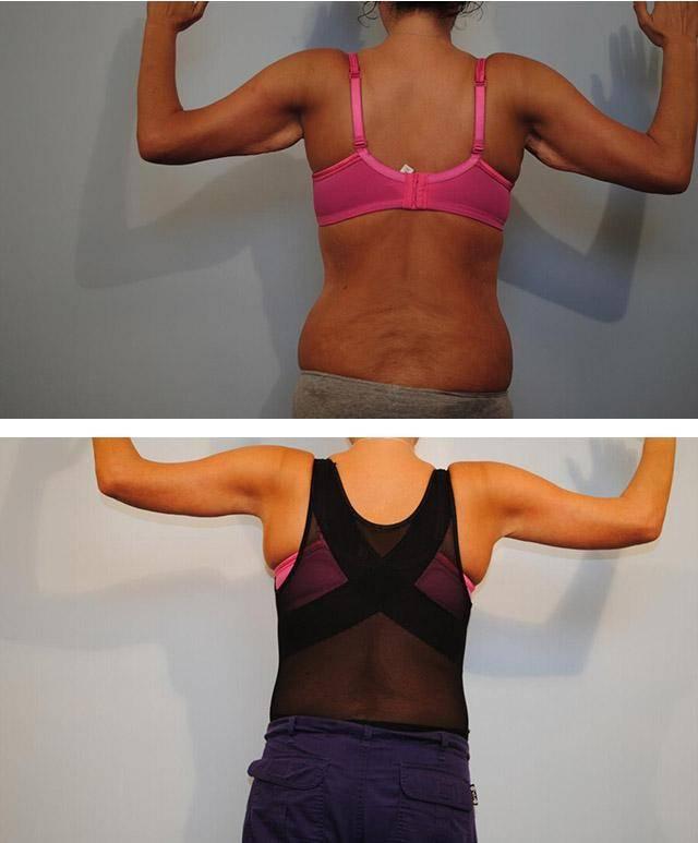 Реальные способы избавиться от обвисшей кожи после похудения