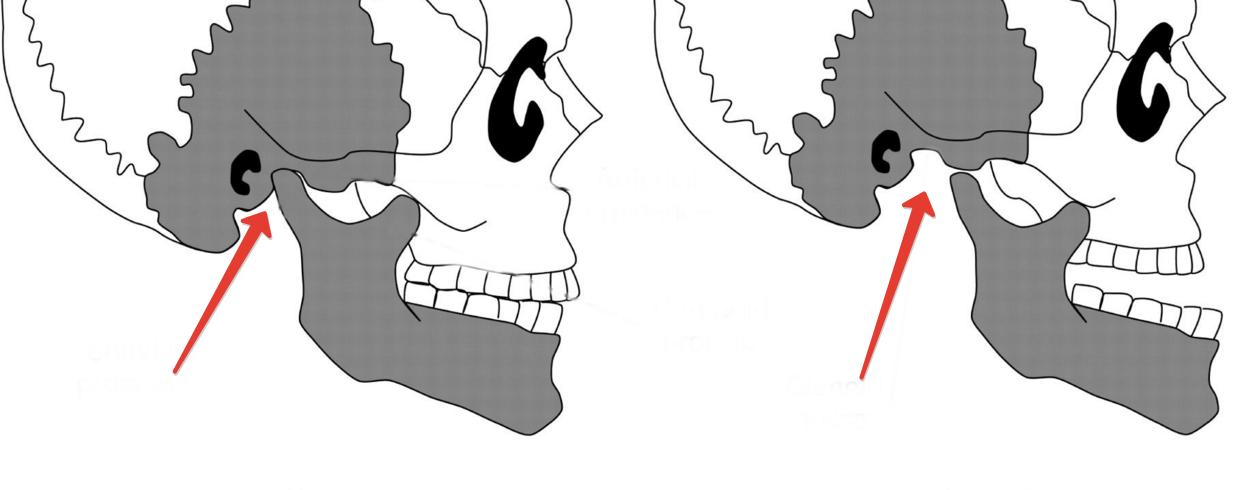 Чем отличается вывих от подвывиха челюсти, отличия в симптоматике и терапии травмы