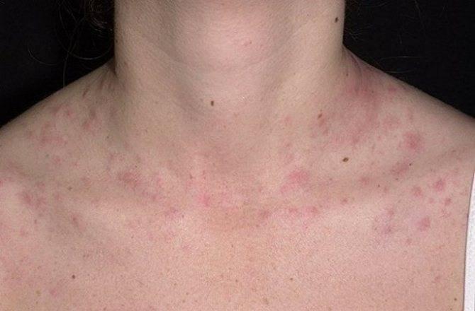 Может ли возникнуть аллергия на нервной почве?