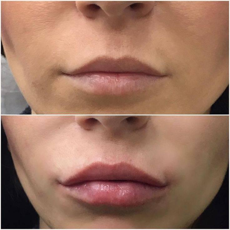 Инъекции гиалуроновой кислоты в губы: все тонкости процедуры, фото до и после