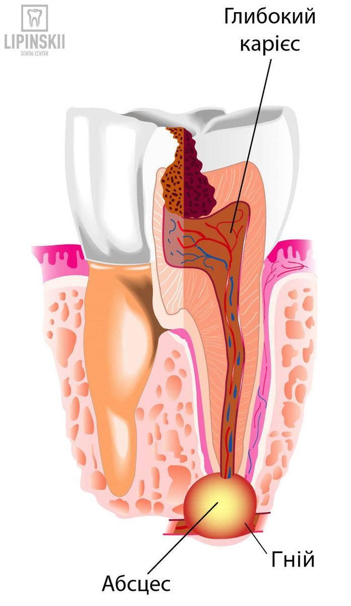 Причины возникновения абсцесса зуба и способы его лечения