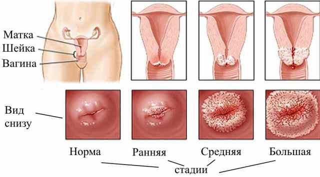 Опасна ли эрозия шейки матки у рожавших женщин и какое лечение могут назначить?