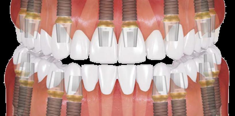Обзор зубных имплантов корейского производства