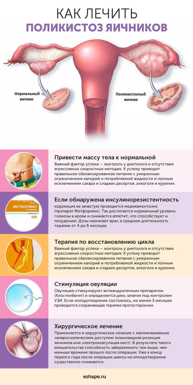 Что такое кистозное изменение женских яичников
