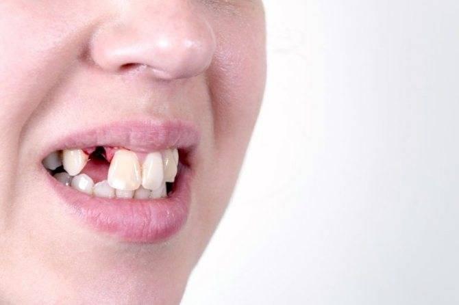 Сколько может идти кровь после удаления зубов мудрости
