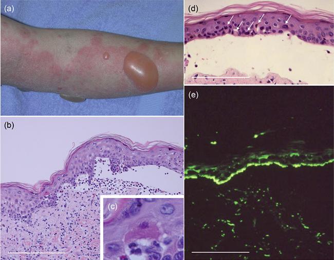 Буллезный дерматит народные средства лечения