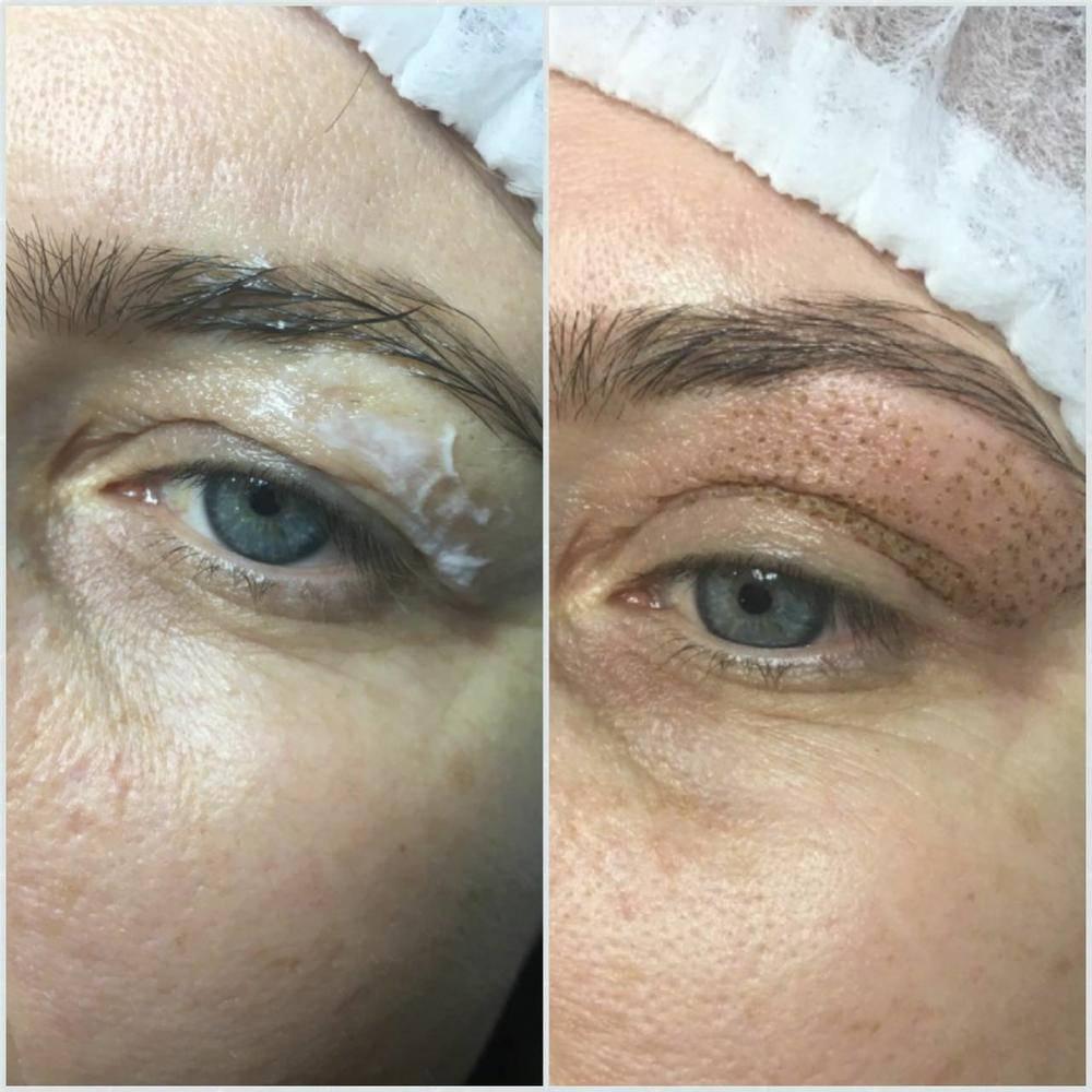 Лазерная шлифовка кожи вокруг глаз — омолаживающая процедура