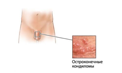 Появление папиллом на теле: причины и способы лечения