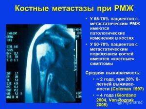 Куда дает метастазы рак молочной железы