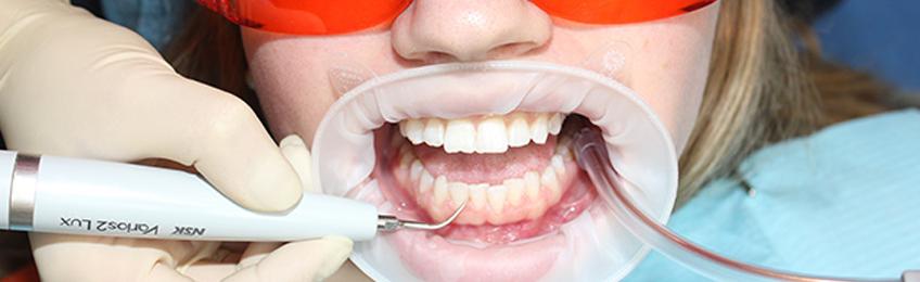 Удаление зубного камня, методы в стоматологии