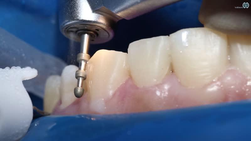 Препарирование зубов под коронку