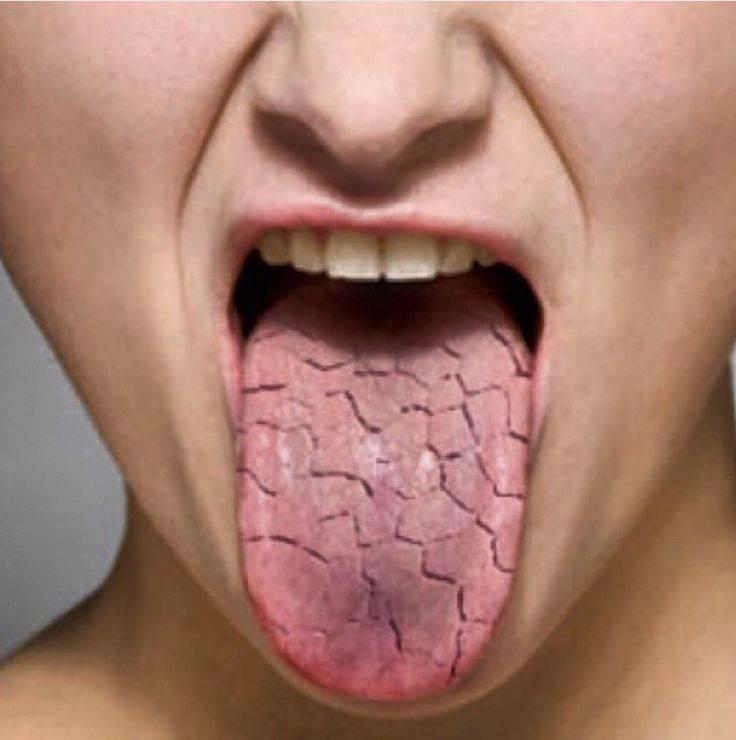 Сильная сухость во рту. причины ночью, по утрам, болезни и лечение
