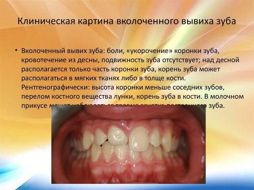 Вывих зуба: симптомы, профилактика и лечение