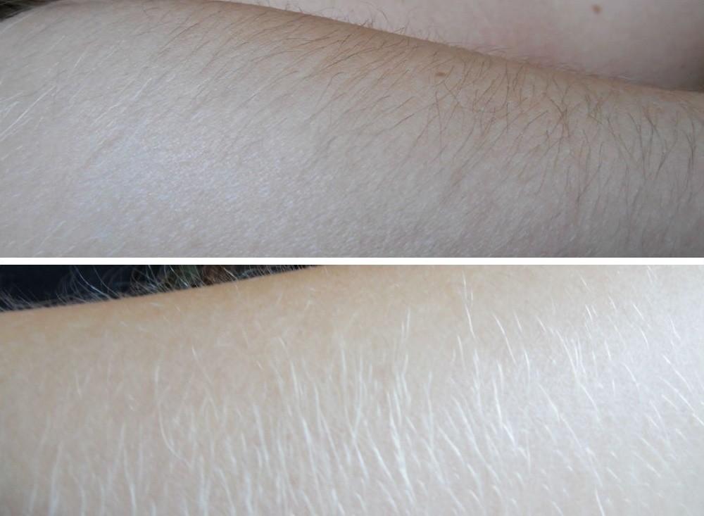 Осветление волос перекисью водорода на лице, теле, руках и ногах